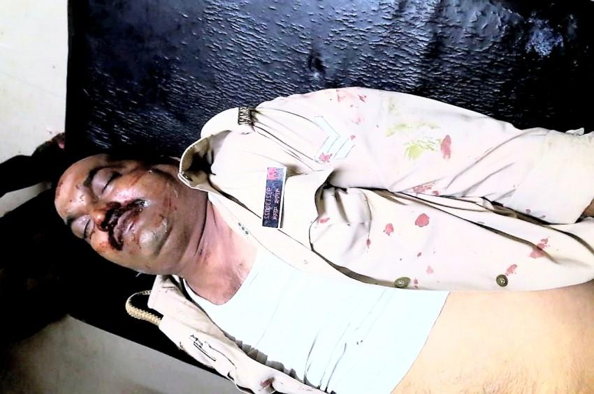सड़क हादसा:डीसीएम के कुचलने से सिपाही की मौत एसआई गंभीर रूप से घायल