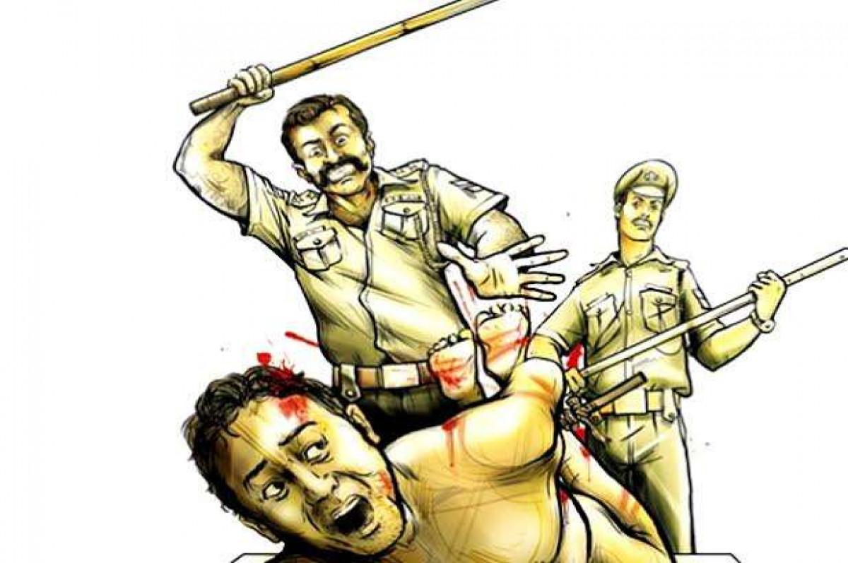सरेआम गुंडागर्दी कर रही है उत्तराखंड पुलिस,  युवक को पीट-पीटकर किया बेहोश